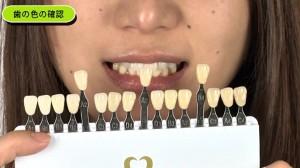 歯モデル㈪