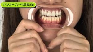 歯モデル㈫