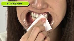 歯モデル㈬